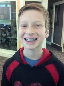 Our newest braces boy!